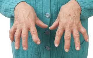 Ревматоидный артрит пальцев рук – первые симптомы, причины поражения