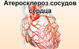 Инфаркт задней стенки сердца — характеристика, причины, диагностика, осложнения