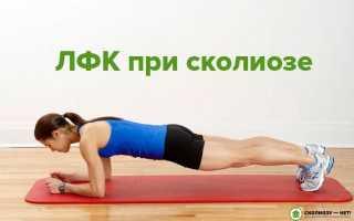 Сколиоз 1 степени – лечение болезни с помощью массажа и лечебной физкультуры