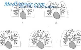 Атрезия легочной артерии — разновидности, диагностика и осложнения патологии