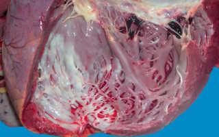 Аневризма сосудов сердца – причины появления, признаки и меры профилактики
