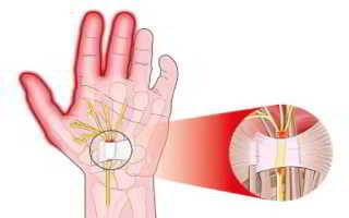 Тендовагинит лучезапястного сустава – лечение, диагностика, этиология, клиника
