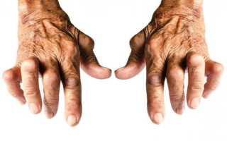 Серопозитивный ревматоидный артрит – лечение заболевания медикаментами