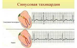 Чем отличаются аритмия и тахикардия — особенности течения заболеваний