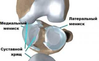 Киста мениска коленного сустава – отчего возникает патология, как она проявляется