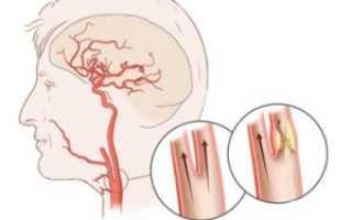 Нестенозирующий атеросклероз брахиоцефальных артерий что это такое