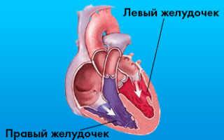 Инфаркт правого желудочка — признаки и симптомы, лечение, профилактика