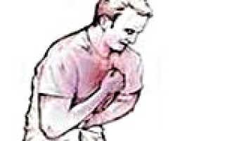 Нестабильная стенокардия – симптомы и лечение, профилактика