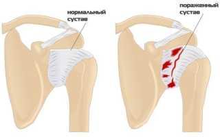 Капсулит плечевого сустава – как лечить, методы терапии, профилактика