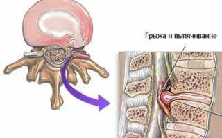 Беременность и грыжа поясничного отдела позвоночника: симптоматика, лечебные и профилактические меры