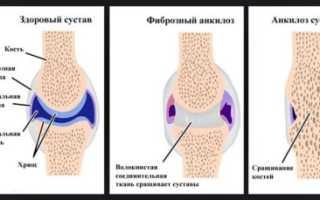 Анкилоз тазобедренного сустава – факторы риска и причины, клиническая картина