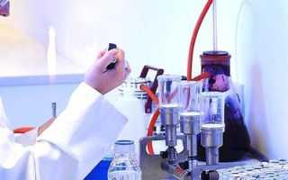 Характеристика 1 группа крови с положительным резусом – система АВ0, резус система