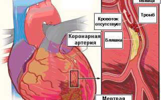 Тромб в сердце – причины, симптомы, признаки и последствия