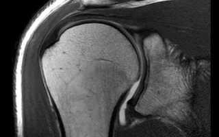 МРТ плечевого сустава – что можно обнаружить при таком исследовании?