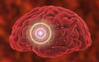 Лакунарный инфаркт — причины заболевания, симптоматика и лечение