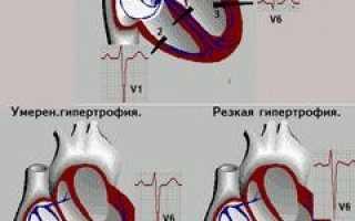 Гипертрофия правого желудочка – причины, фазы развития и методы диагностики