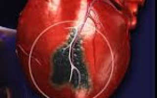 Инфаркт — симптомы, первые признаки, осложнения, лечение и профилактика