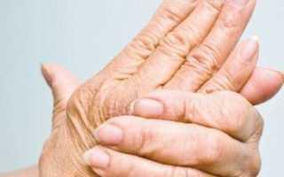 Остеопороз кистей рук – симптомы и лечение патологии, основные причины развития, методы диагностики