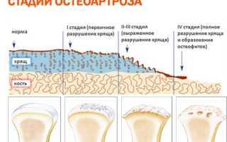 Первичный генерализованный остеоартроз – проявления, лечение