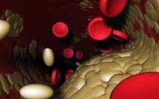 Холестерин 9 – чем опасен высокий уровень холестерина, причины повышения?