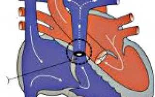Стеноз легочной артерии — стадии развития, причины, диагностика, терапия