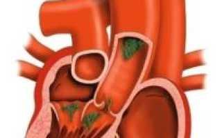 Пролапс митрального клапана — характеристика, признаки, диагностика и лечение