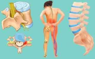 Спондилолистез пояснично-крестцового отдела позвоночника – отличительные признаки