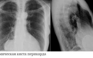 Киста перикарда — причины развития патологии, симптомы и способы удаления