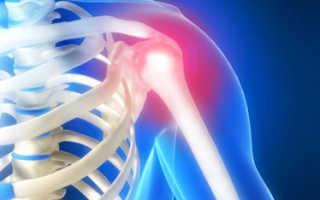 Плечелопаточный периартроз – симптомы и лечение заболевания, основные способы диагностики