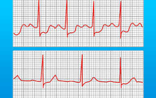 ЭКГ при стенокардии — особенности процедуры, дополнительные тесты