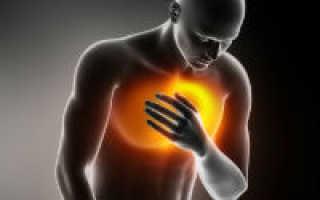 Инфаркт в 20 лет – причины развития приступа у молодых, организация лечения