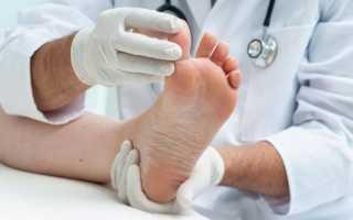 Лечение подагры йодом – симптоматика заболевания, народные средства