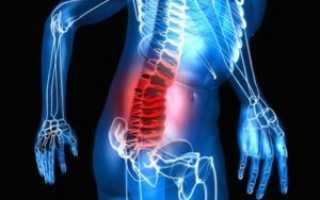 Лечение межпозвоночной грыжи поясничного отдела без операции – консервативная и альтернативная терапия