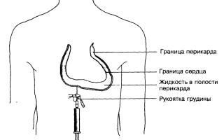 Пункция перикарда — особенности процедуры, показания к ее назначению