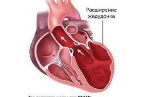 Ишемическая кардиомиопатия — отличительные черты, симптомы и лечение
