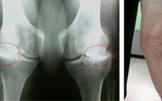 Гонартроз коленного сустава 3 степени – лечение, причины нарушения, медикаментозные и хирургические методики