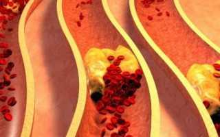 Травы, разжижающие кровь и препятствующие образованию тромбов – противопоказания