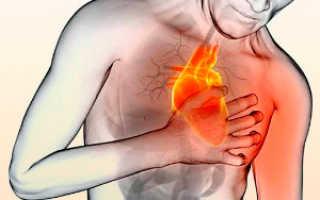 Предсердная тахикардия — симптоматика, причины появления, методы лечения