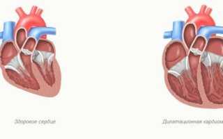 Дилатационная кардиомиопатия – почему и как развивается, правила лечения