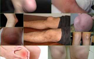 Препателлярный бурсит коленного сустава – симптомы и признаки, диагностика и лечение