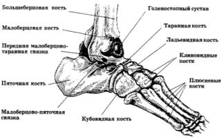 Остеохондропатия пяточной кости у детей – симптомы, методы диагностики, лечение