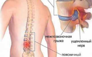 Грыжа позвоночника – МРТ и дополнительные методы диагностики, их ценность