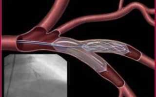 Стентирование при инфаркте миокарда — ход операции, последствия и реабилитация