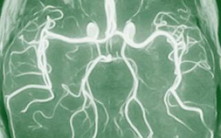 Ангиография — показания к процедуре, особенности проведения и противопоказания