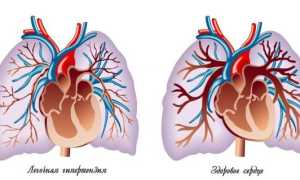 Регургитация на клапане легочной артерии 1 степени — симптоматика, диагностика и лечение