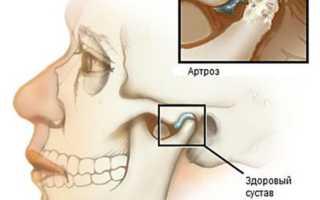 Артроз челюстно лицевого сустава – симптомы и лечение в амбулаторных условиях