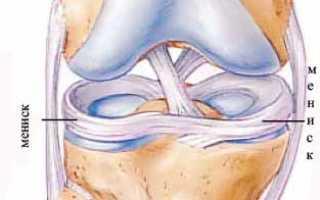 Разрыв медиального мениска коленного сустава – частота встречаемости и методы диагностики