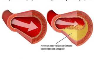 Хроническая ишемическая болезнь сердца – причины и факторы риска, лечение
