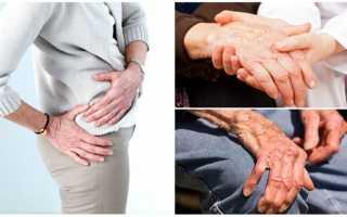 Полиартроз – симптомы и лечение, как проводится диагностирование и стадии заболевания