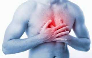 Упражнения при межреберной невралгии – польза, возможный вред